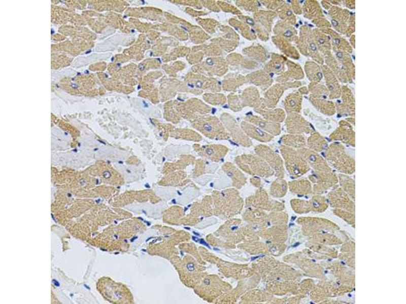 Image no. 1 for anti-Calpastatin (CAST) antibody (ABIN6566472)