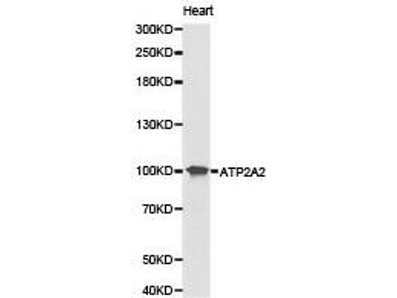 Western Blotting (WB) image for anti-ATPase, Ca++ Transporting, Cardiac Muscle, Slow Twitch 2 (ATP2A2) antibody (ABIN1871156)