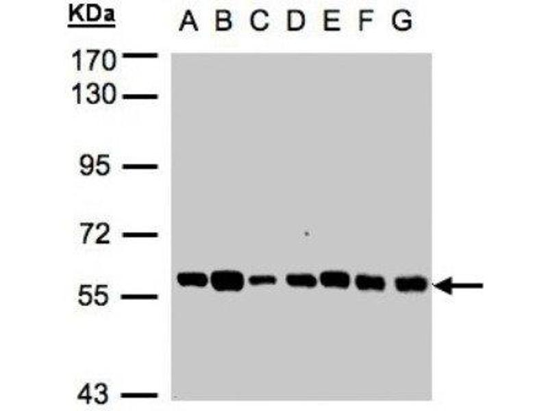 Western Blotting (WB) image for anti-TULP1 antibody (Tubby Like Protein 1) (Center) (ABIN441406)
