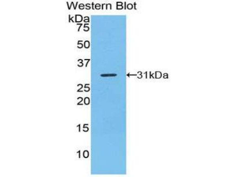 Western Blotting (WB) image for anti-TNFRSF1A-Associated Via Death Domain (TRADD) (AA 24-261) antibody (ABIN1860855)