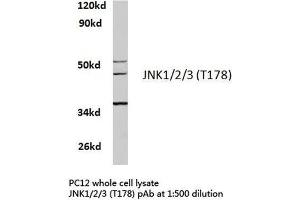 Western Blotting (WB) image for anti-Mitogen-Activated Protein Kinase 8 (MAPK8) antibody (ABIN4327964)