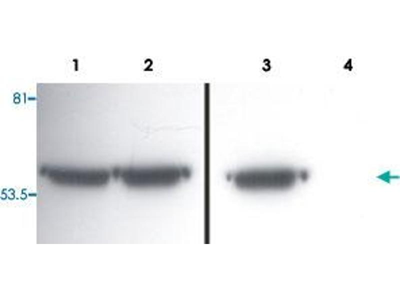 Western Blotting (WB) image for anti-Vimentin (VIM) antibody (ABIN535492)