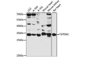 Image no. 1 for anti-TatD DNase Domain Containing 1 (TATDN1) antibody (ABIN6293775)