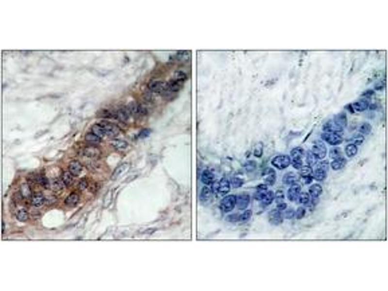 Immunohistochemistry (IHC) image for anti-Janus Kinase 2 (JAK2) (AA 191-240) antibody (ABIN1532914)