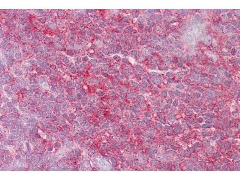 Immunohistochemistry (IHC) image for anti-Kinesin Heavy Chain Member 2A (KIF2A) (N-Term) antibody (ABIN2778183)
