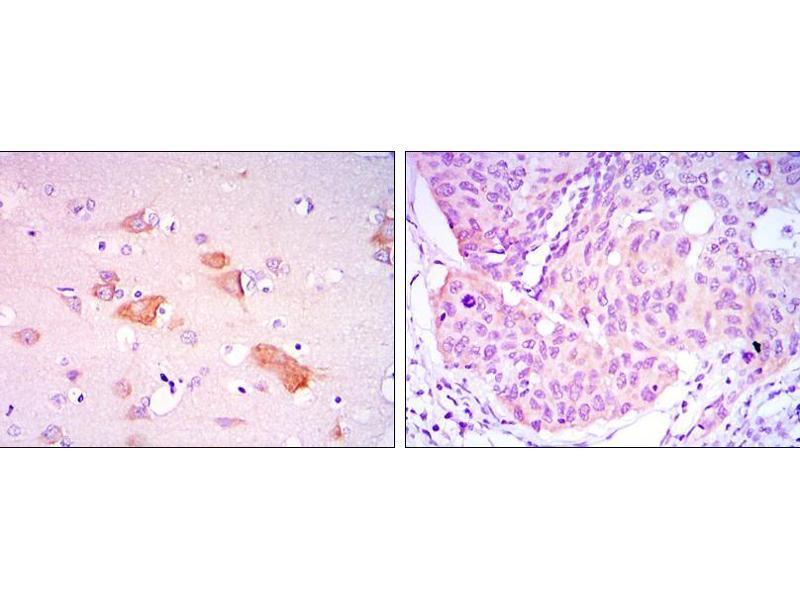 Immunohistochemistry (IHC) image for anti-SMAD, Mothers Against DPP Homolog 5 (SMAD5) antibody (ABIN969404)