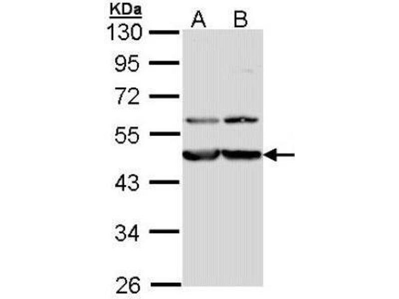 Western Blotting (WB) image for anti-Calreticulin 3 (CALR3) (Center) antibody (ABIN443224)