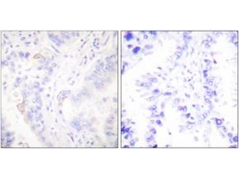 Immunohistochemistry (IHC) image for anti-V-Crk Sarcoma Virus CT10 Oncogene Homolog (Avian) (CRK) (AA 187-236) antibody (ABIN1532240)