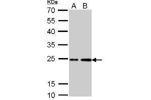 Western Blotting (WB) image for anti-HRAS antibody (V-Ha-Ras Harvey Rat Sarcoma Viral Oncogene Homolog) (ABIN2440517)