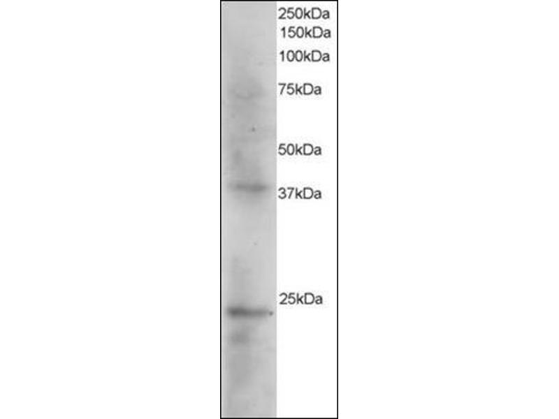 Western Blotting (WB) image for anti-SET Antikörper (SET Nuclear Oncogene) (N-Term) (ABIN615456)