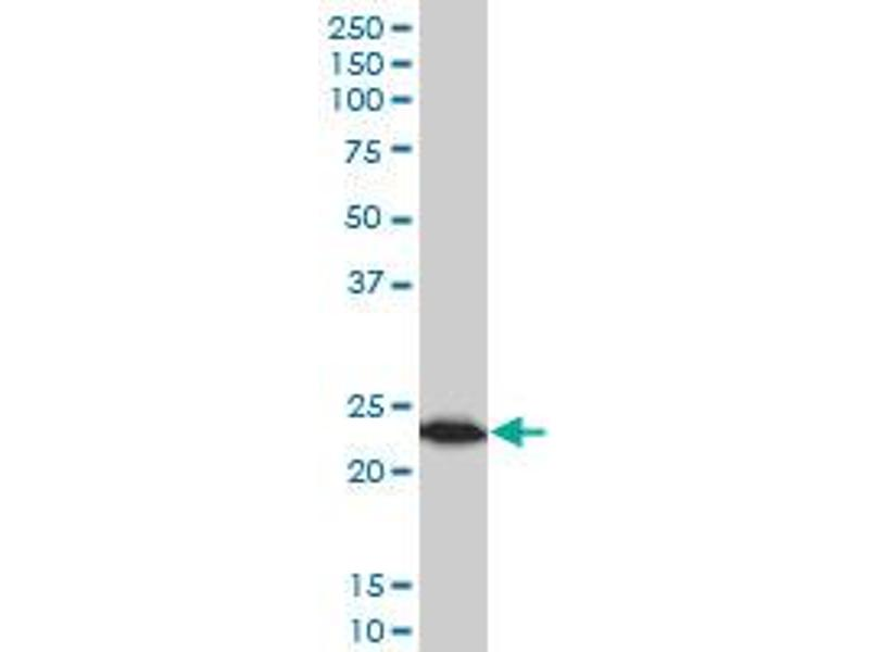 Western Blotting (WB) image for anti-Tumor Protein, Translationally-Controlled 1 (TPT1) (AA 35-138) antibody (ABIN521072)