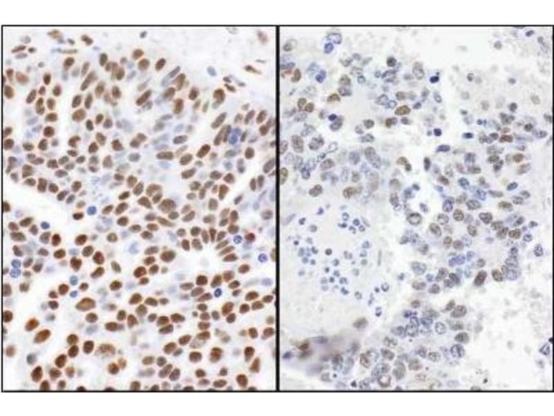 Immunohistochemistry (Paraffin-embedded Sections) (IHC (p)) image for anti-TP53BP1 antibody (Tumor Protein P53 Binding Protein 1) (AA 350-400) (ABIN151770)