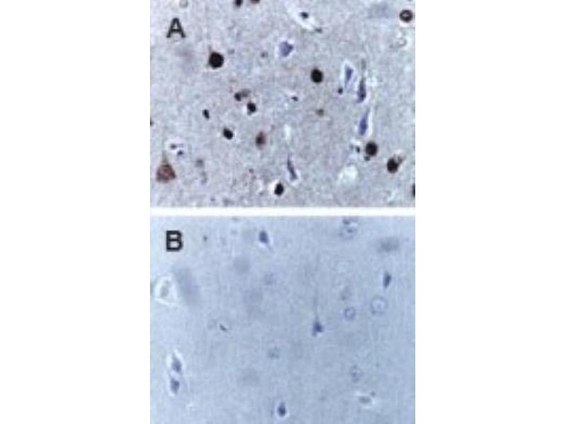 Immunohistochemistry (Paraffin-embedded Sections) (IHC (p)) image for anti-Caspase 9, Apoptosis-Related Cysteine Peptidase (CASP9) antibody (ABIN4288194)
