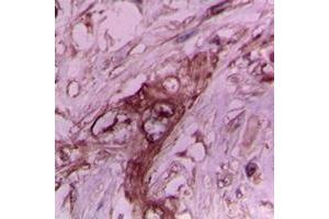 Immunohistochemistry (IHC) image for anti-Collagen, Type II, alpha 1 (COL2A1) (N-Term) antibody (ABIN2707435)