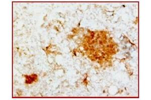 image for anti-Amyloid beta (Pyroglutamated/pGlu) Peptide antibody (ABIN459385)