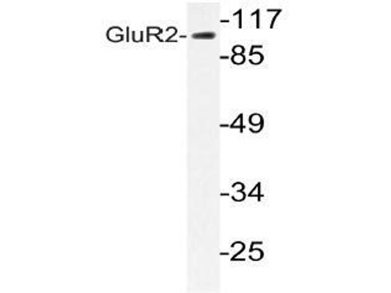 Western Blotting (WB) image for anti-GRIA2 antibody (Glutamate Receptor, Ionotropic, AMPA 2) (ABIN498651)