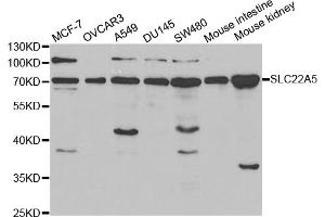 Image no. 1 for anti-Solute Carrier Family 22 Member 5 (SLC22A5) antibody (ABIN6568843)