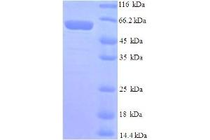 Image no. 1 for Mdm2, p53 E3 Ubiquitin Protein Ligase Homolog (Mouse) (MDM2) (AA 1-489), (full length) protein (His tag) (ABIN5709925)