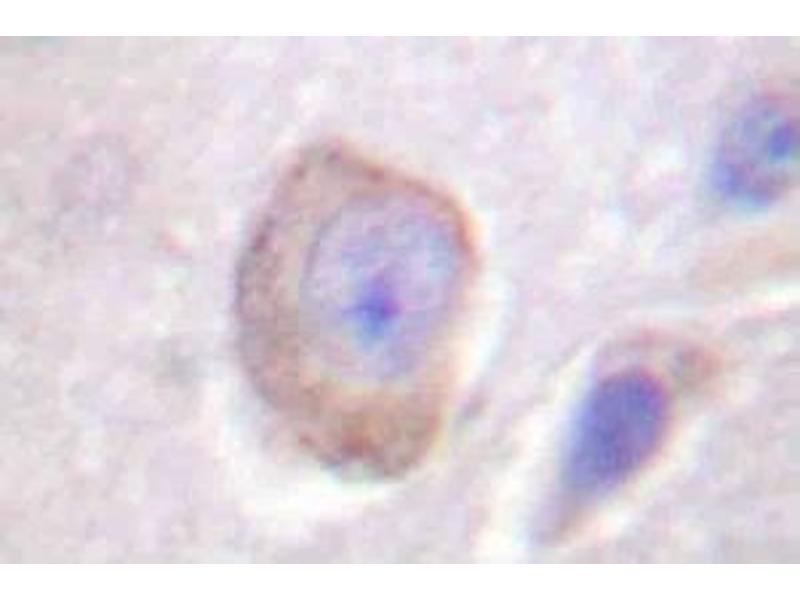 image for anti-Interleukin 3 Receptor, alpha (Low Affinity) (IL3RA) antibody (ABIN265478)