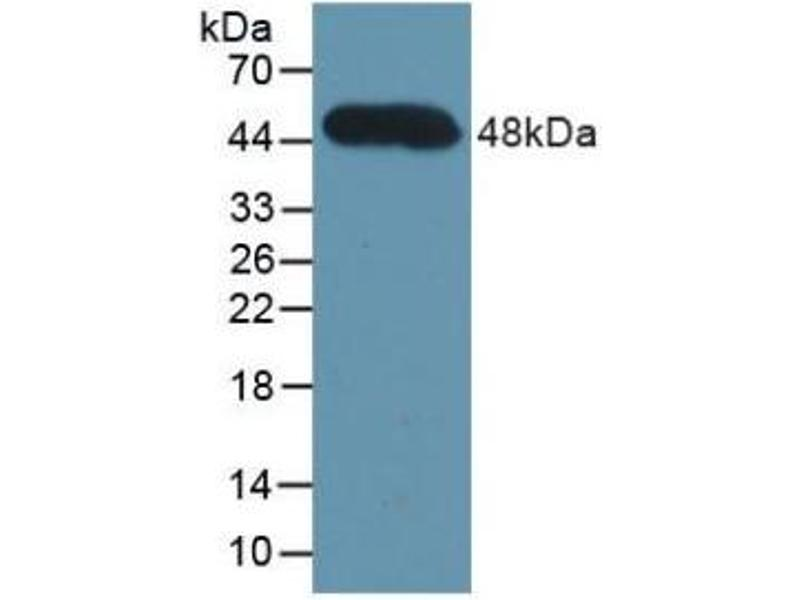 Western Blotting (WB) image for anti-Complement Factor H (CFH) (AA 860-1231) antibody (ABIN2896777)