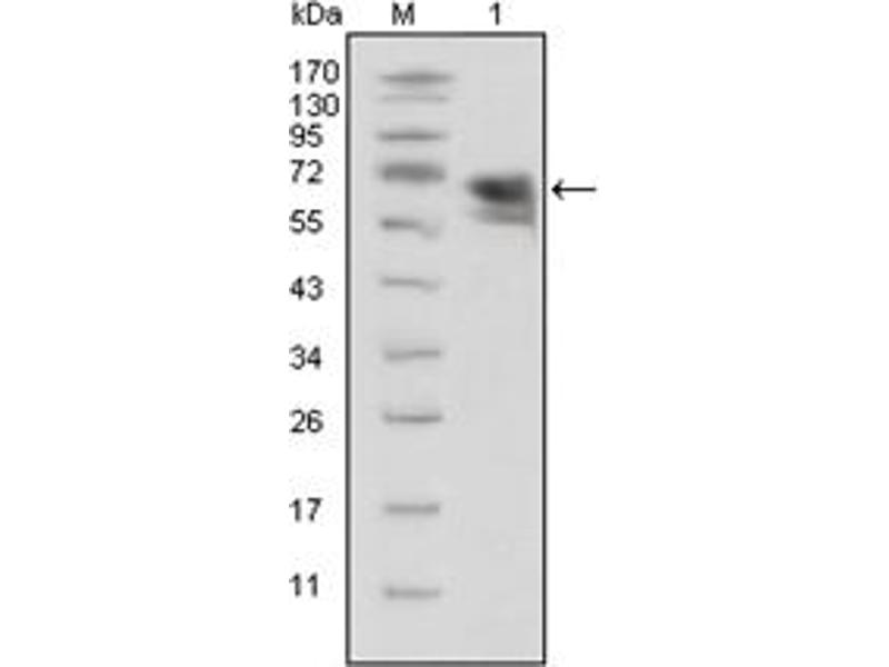 Western Blotting (WB) image for anti-TRKA antibody (Neurotrophic Tyrosine Kinase, Receptor, Type 1) (ABIN1109343)