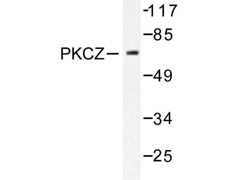 image for anti-PKC zeta antibody (Protein Kinase C, zeta) (ABIN271785)