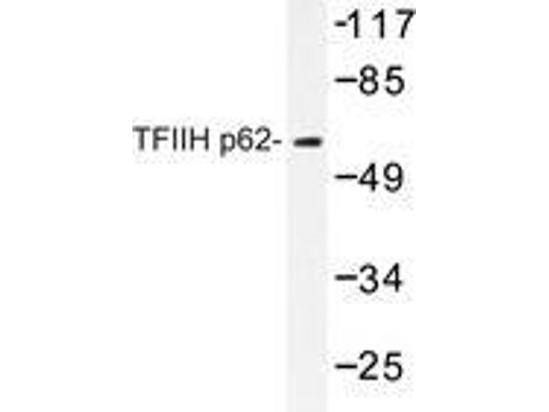 Western Blotting (WB) image for anti-General Transcription Factor IIH, Polypeptide 1, 62kDa (GTF2H1) antibody (ABIN498311)