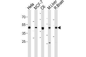 Western Blotting (WB) image for anti-Mitogen-Activated Protein Kinase Kinase 2 (MAP2K2) (AA 1-30), (N-Term) antibody (ABIN1882178)