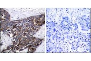 Immunohistochemistry (IHC) image for anti-Gap Junction Protein, alpha 1, 43kDa (GJA1) (AA 332-381), (pSer367) antibody (ABIN1531807)