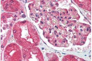 Immunohistochemistry (Paraffin-embedded Sections) (IHC (p)) image for anti-Activating Transcription Factor 2 (ATF2) (Thr51) antibody (ABIN213743)