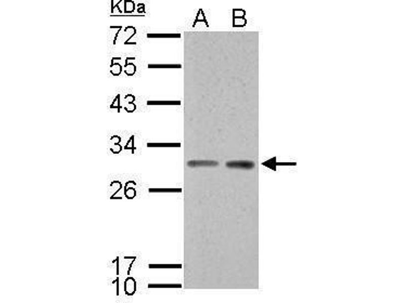 Western Blotting (WB) image for anti-Stratifin (SFN) (C-Term) antibody (ABIN2854692)