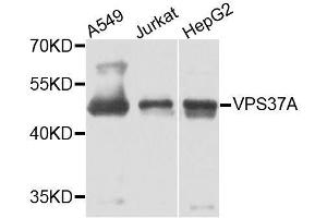 Image no. 3 for anti-Vacuolar Protein Sorting 37 Homolog A (S. Cerevisiae) (VPS37A) antibody (ABIN6150133)