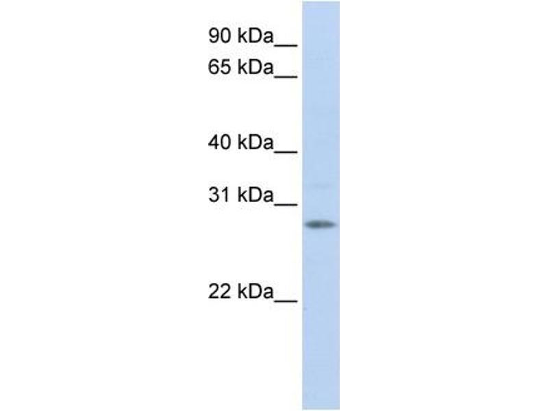 Western Blotting (WB) image for anti-Insulin-Like Growth Factor Binding Protein 4 (IGFBP4) (Middle Region) antibody (ABIN2782316)