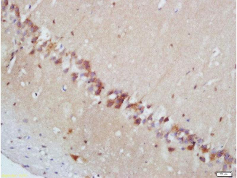 Immunohistochemistry (Paraffin-embedded Sections) (IHC (p)) image for anti-MAPKAP Kinase 2 antibody (Mitogen-Activated Protein Kinase-Activated Protein Kinase 2) (AA 192-230) (ABIN743678)