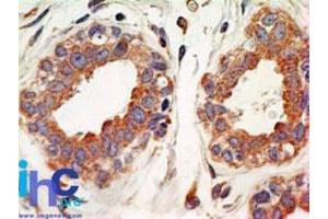 Immunohistochemistry (Paraffin-embedded Sections) (IHC (p)) image for anti-NFKBIA antibody (Nuclear Factor of kappa Light Polypeptide Gene Enhancer in B-Cells Inhibitor, alpha) (AA 32-291) (ABIN252471)