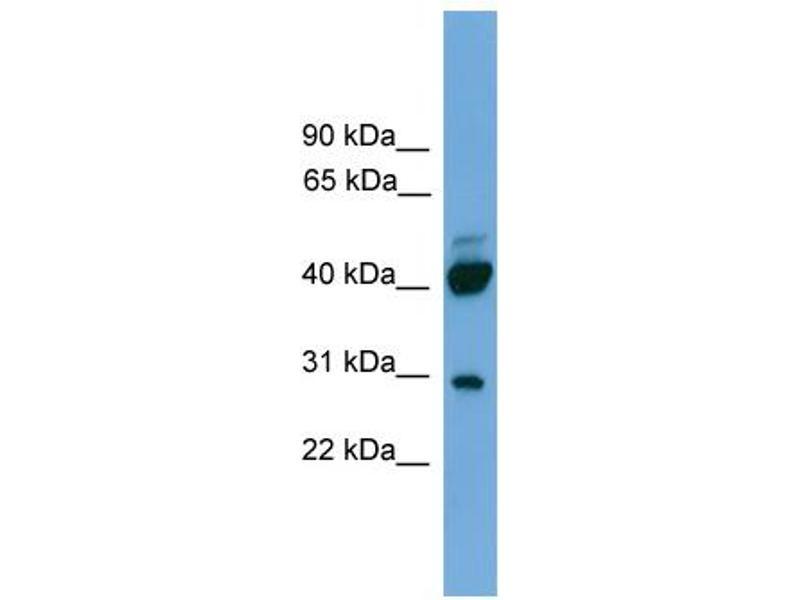 Western Blotting (WB) image for anti-Proline Rich 5 (Renal) (PRR5) (N-Term) antibody (ABIN2786881)