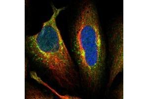 Image no. 2 for anti-Aftiphilin (AFTPH) antibody (ABIN5572177)