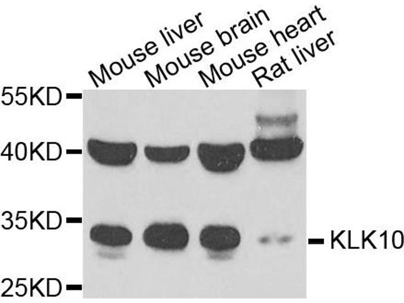 Western Blotting (WB) image for anti-Kallikrein 10 (KLK10) antibody (ABIN2563584)