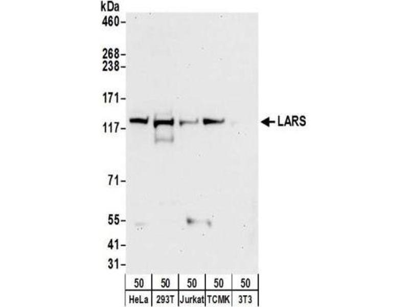 Western Blotting (WB) image for anti-Leucyl-tRNA Synthetase (LARS) antibody (ABIN4330338)