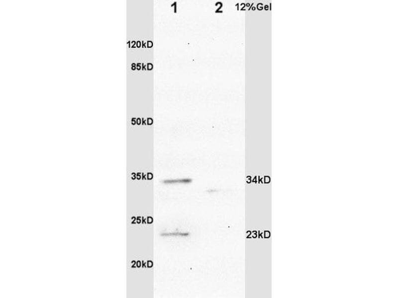 SDS-PAGE (SDS) image for anti-Insulin-Like Growth Factor Binding Protein 6 (IGFBP6) (AA 140-190) antibody (ABIN753298)