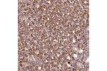 Immunohistochemistry (IHC) image for anti-ACTR3 antibody (ARP3 Actin-Related Protein 3 Homolog (Yeast)) (ABIN4278166)