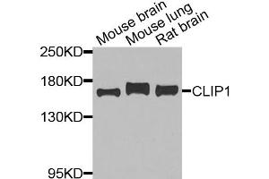 Image no. 2 for anti-CAP-GLY Domain Containing Linker Protein 1 (CLIP1) antibody (ABIN6571307)