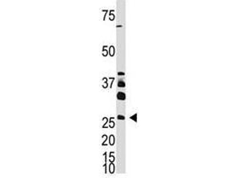 image for anti-Dickkopf Homolog 4 (Xenopus Laevis) (DKK4) (AA 7-36), (N-Term) antibody (ABIN357073)