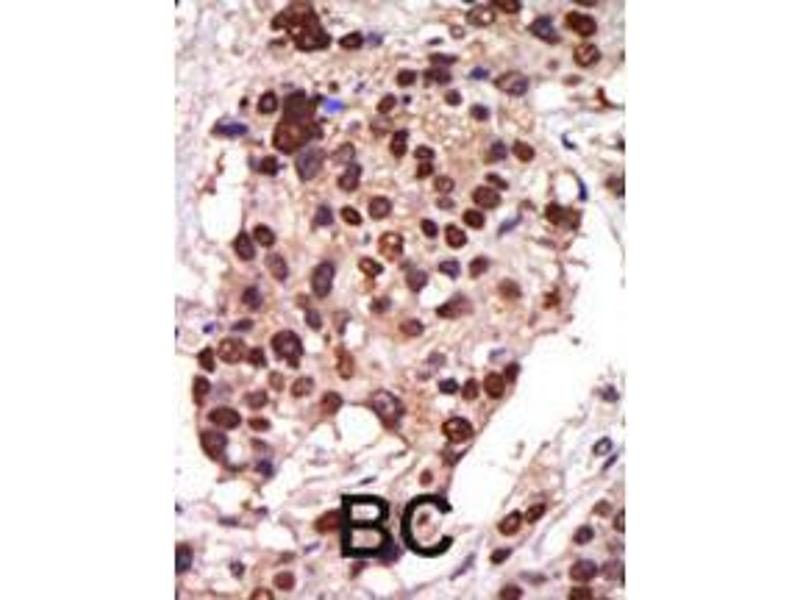 Immunohistochemistry (IHC) image for anti-Protein Kinase D3 (PRKD3) (AA 352-384) antibody (ABIN391014)