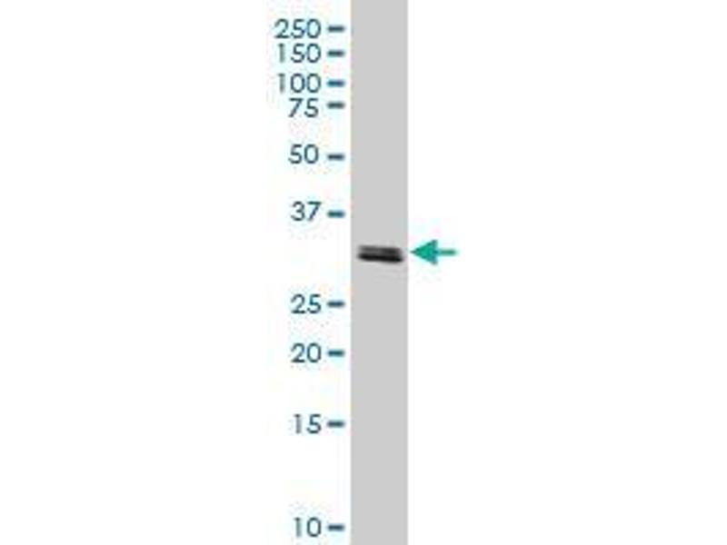 Immunohistochemistry (IHC) image for anti-TATA Box Binding Protein Associated Factor 11 (TAF11) (AA 158-211) antibody (ABIN394298)