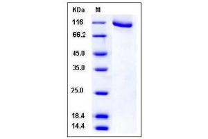 Image no. 1 for Adrenergic, Beta, Receptor Kinase 1 (ADRBK1) (AA 1-689) protein (GST tag,His tag) (ABIN2004759)