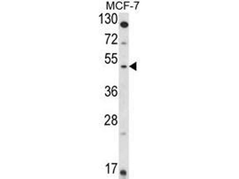 Western Blotting (WB) image for anti-Hydroxysteroid (11-Beta) Dehydrogenase 2 (HSD11B2) (AA 284-314), (Middle Region) antibody (ABIN950176)