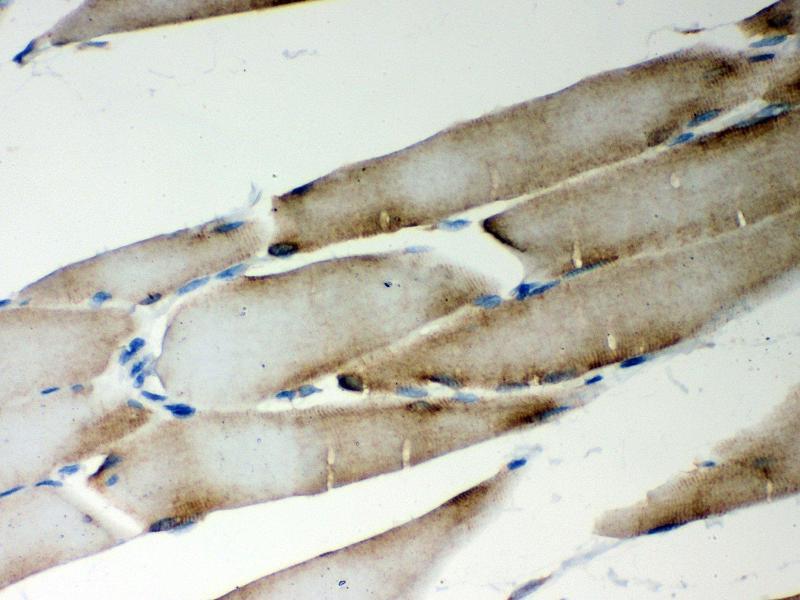 Immunohistochemistry (IHC) image for anti-Metadherin (MTDH) (AA 101-270) antibody (ABIN3043367)