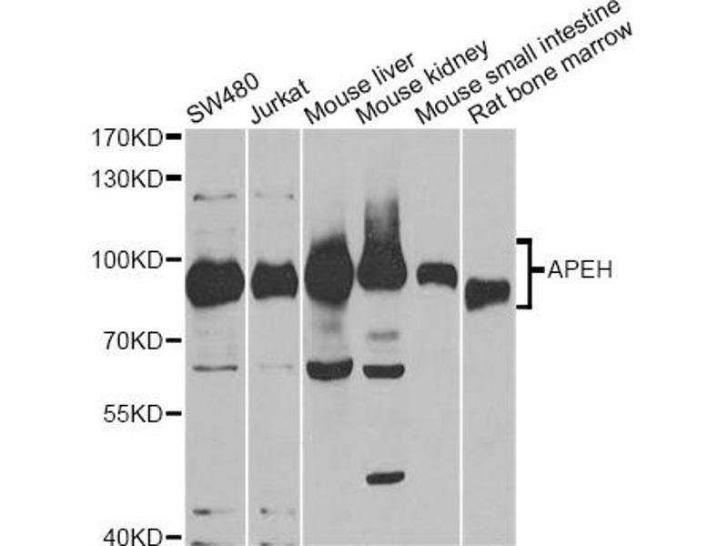 Image no. 1 for anti-N-Acylaminoacyl-Peptide Hydrolase (APEH) antibody (ABIN6567985)