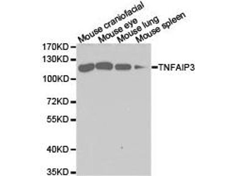Western Blotting (WB) image for anti-Tumor Necrosis Factor, alpha-Induced Protein 3 (TNFAIP3) antibody (ABIN1875125)